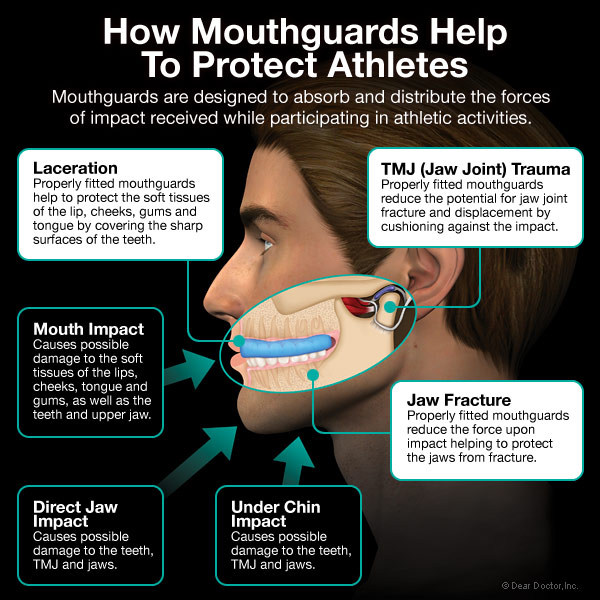 Why Do I Have To Wear A Mouthguard?