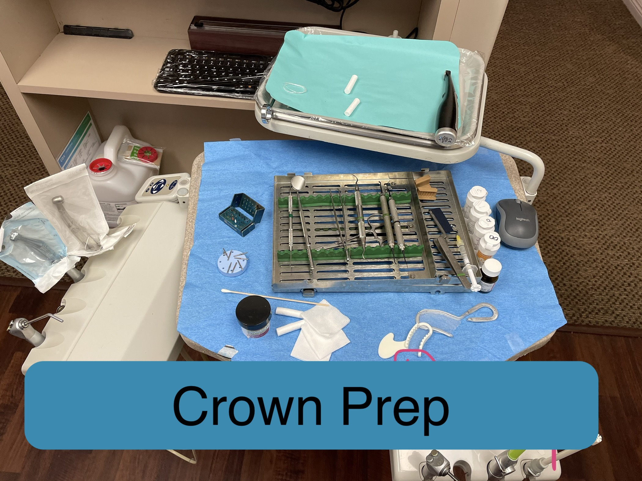Crown Prep Sample