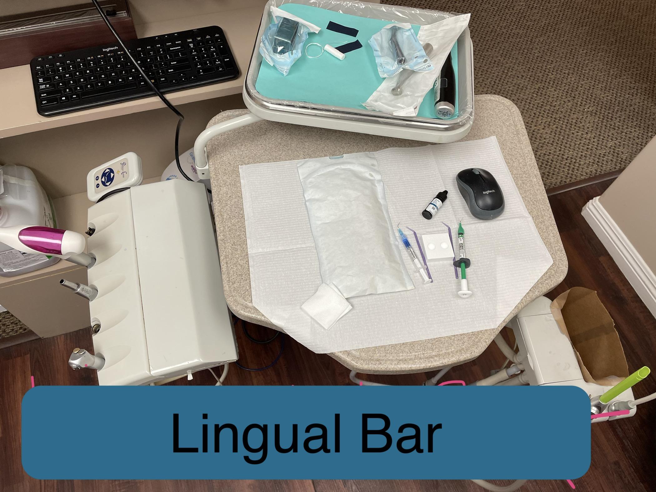 Lingual Bar Sample